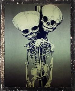 siamese twins skeleton